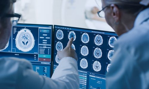 Alzheimer's treatment could decrease rates of harmful protein by 59%