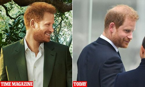 Prince Harry's hair is 'thinning on top', expert says