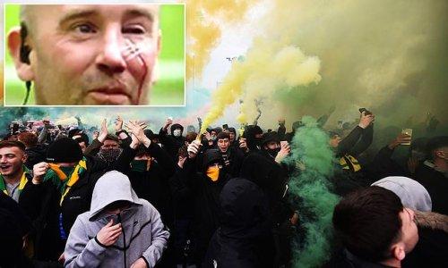 BRYAN ROBSON: Protests had the hallmarks of hooliganism