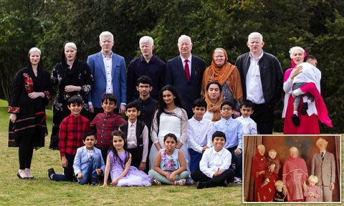 British family with 15 albino members reveal bullying they've faced