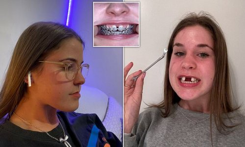 Jaw expansion forced woman's front teeth nearly 2cm apart