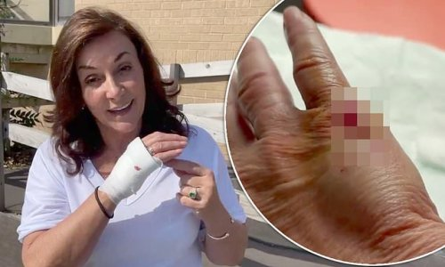 Shirley Ballas dashes to hospital after slicing hand open on knife