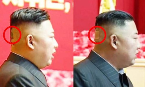 Kim Jong Un spotted with plaster on back of his head and dark spots