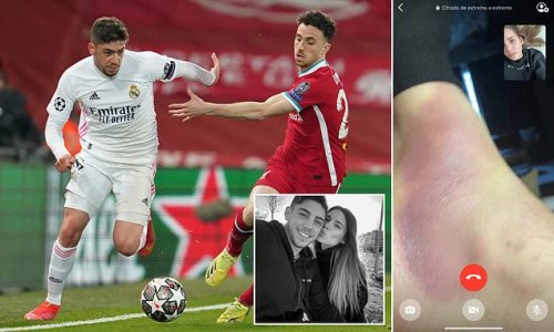 Fede Valverde's wife shows off midfielder's brutal foot bruise