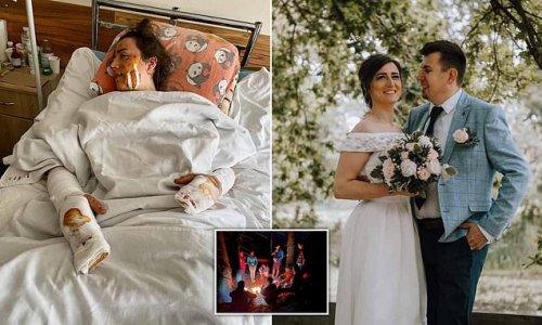 Wife, 31, injured as brother killed by WW1 bomb in Ukrainian honeymoon