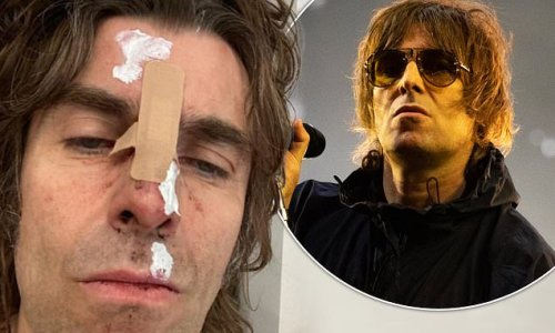 Liam Gallagher suffers facial injury after falling out of helicopter