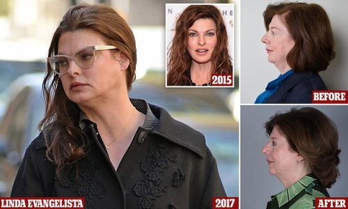 Is this the fat jab Linda Evangelista SHOULD have had?