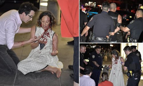 Resident is slashed in her face by Washington Square Park raver