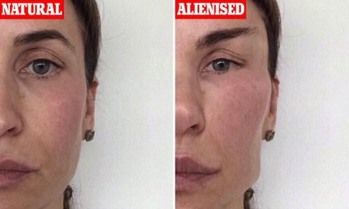 Cosmetic surgeon says 'alienisation' of patients is an 'epidemic'