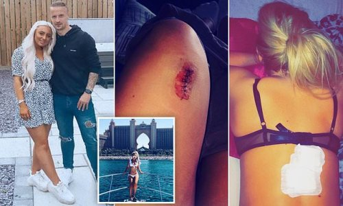 Celtic's Leigh Griffiths' girlfriend issues warning about skin cancer