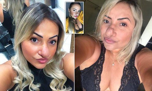 Beauty technician, 42, reveals her nose has DOUBLED in size