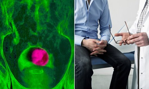 How radiotherapy could cure prostate cancer in just two weeks