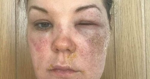 Loose Women egg hack explodes in mum's face as she suffers 'excruciating' burns