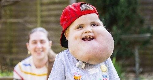 Brave boy learns to walk despite grapefruit sized facial cysts limiting balance