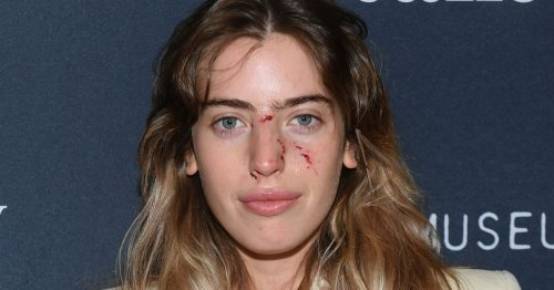 Ewan McGregor's daughter Clara bitten on face by dog before red carpet event