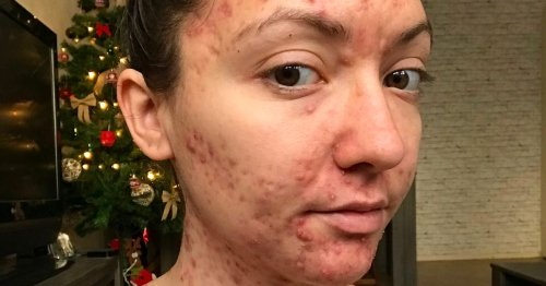 Woman was too self conscious to have sex after severe acne flared up across body