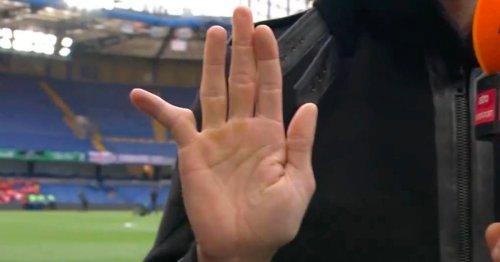 Chelsea legend Hasselbaink can't believe Rob Green's deformed finger