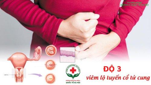 [ viêm lộ tuyến cấp độ 3 ] Bác sĩ tư vấn cách chữa trị hiệu quả