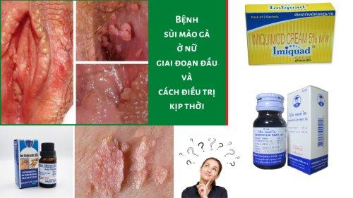 TOP 3 loại thuốc trị sùi mào gà ở nữ tốt nhất | Bác sĩ tư vấn