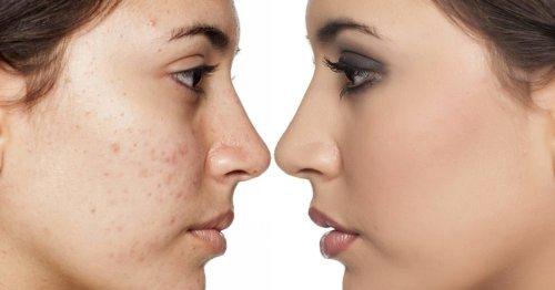 Nicht komedogenes Make-up: Die 8 wichtigsten Fakten | desired.de