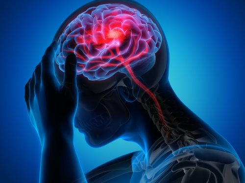 Spektrum-Podcast | Migräne - Mehr als Kopfschmerzen – Wie eine La-Ola-Welle im Gehirn | detektor.fm – Das Podcast-Radio