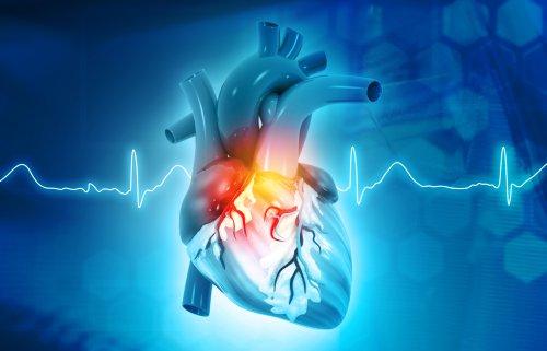 """Una cardiologia più efficiente ha bisogno di un EI """"robusto"""""""