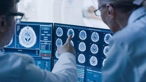 I progressi nella diagnostica per immagini che hanno trasformato il settore sanitario