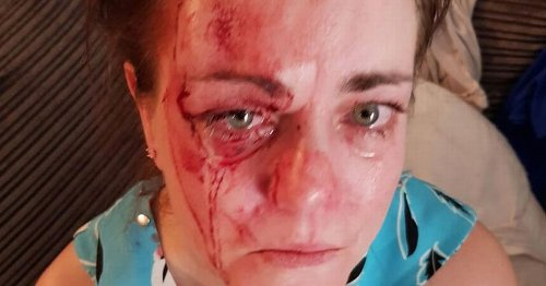 Woman's world 'turned upside down' after vicious attack forced her to move home