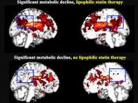 Lipophilic statin use linked to increased risk of dementia
