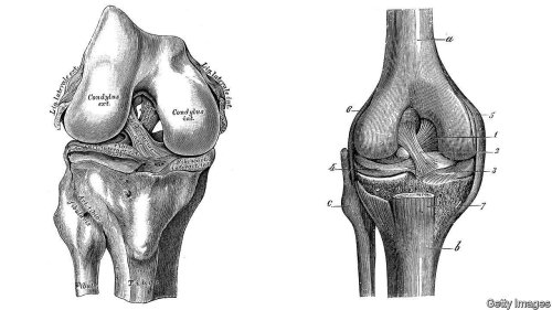 ACL injuries are a growing problem