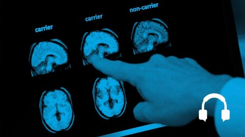 A flicker of light for the treatment of Alzheimer's