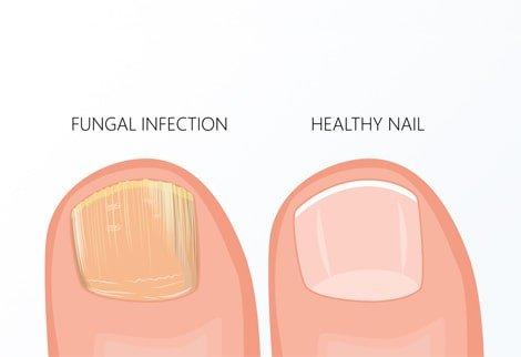 Nail Fungus | Emuaid