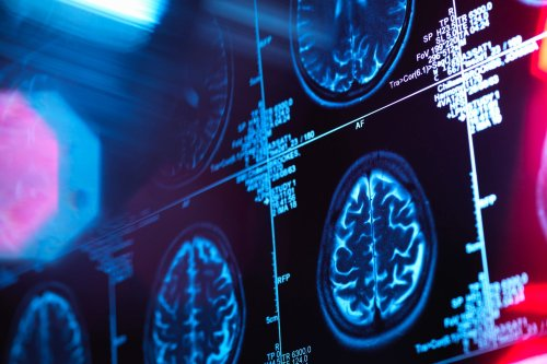 CBD Improves Cognitive Function In Traumatic Brain Injury Victims, New Study Finds