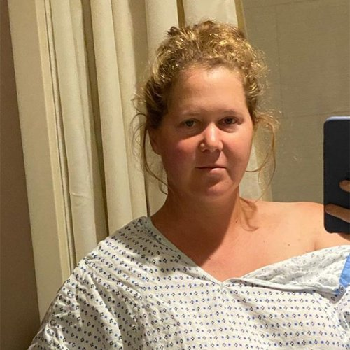 Amy Schumer Says She Had Her Uterus and Appendix Removed During Endometriosis Surgery