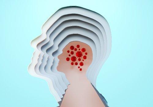 La COVID-19 puede causar problemas cerebrales severos y graves según un estudio
