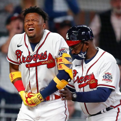 Acuna HBP, day-to-day with left pinkie contusion