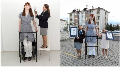 Die größte Frau der Welt: Türkin misst 2,15 Meter