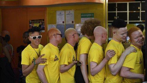 13 juin, journée mondiale de sensibilisation à l'albinisme