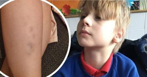 Angry dad pulls son out of school claiming he came home with bruises