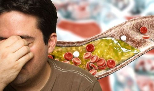 High cholesterol symptoms: The warning sign 'near the nose' of high cholesterol levels