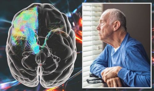 End of Parkinson's? Cutting-edge 3D scans of monkey brains offer hope of fighting disease