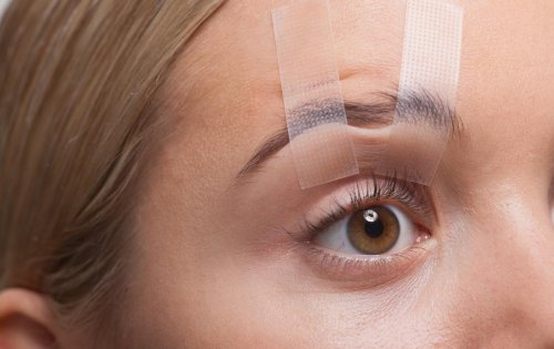 """Chirurgie des paupières avant/après : """"Je ne supportais plus mon regard fatigué"""""""