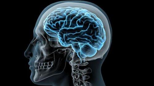 Cerveau  cover image