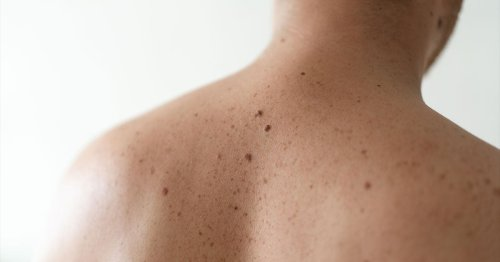 Men's Skin Cancer Rates Dwarf Those of Women. Toxic Masculinity Is to Blame.