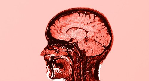 New Study Finds Frightening Connection Between Weight Gain and Brain Health