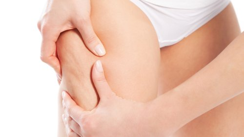 How to Get Rid of Cellulite Using Amino Acid and a Low-Carb Diet