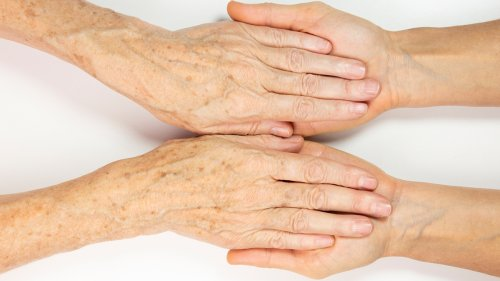 How to Get Rid of Age Spots on Your Hands, Arms, and Face