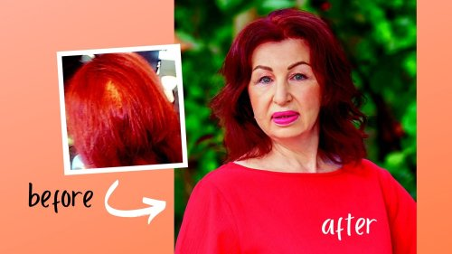 'This $20 Supplement Reversed My Hair Loss!'