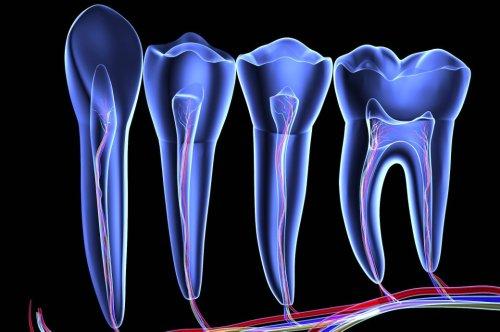 Wie gefährlich sind tote Zähne für die Gesundheit?