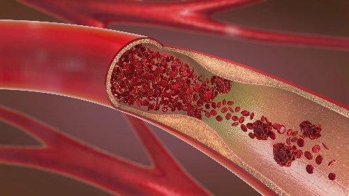Sinusvenenthrombose häufiger nach Infektion als nach Impfung - FITBOOK